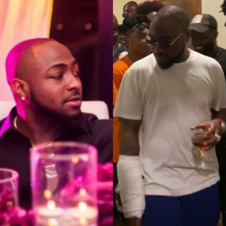 Accident? Davido's Hand Badly Injured (See Photos + Video)